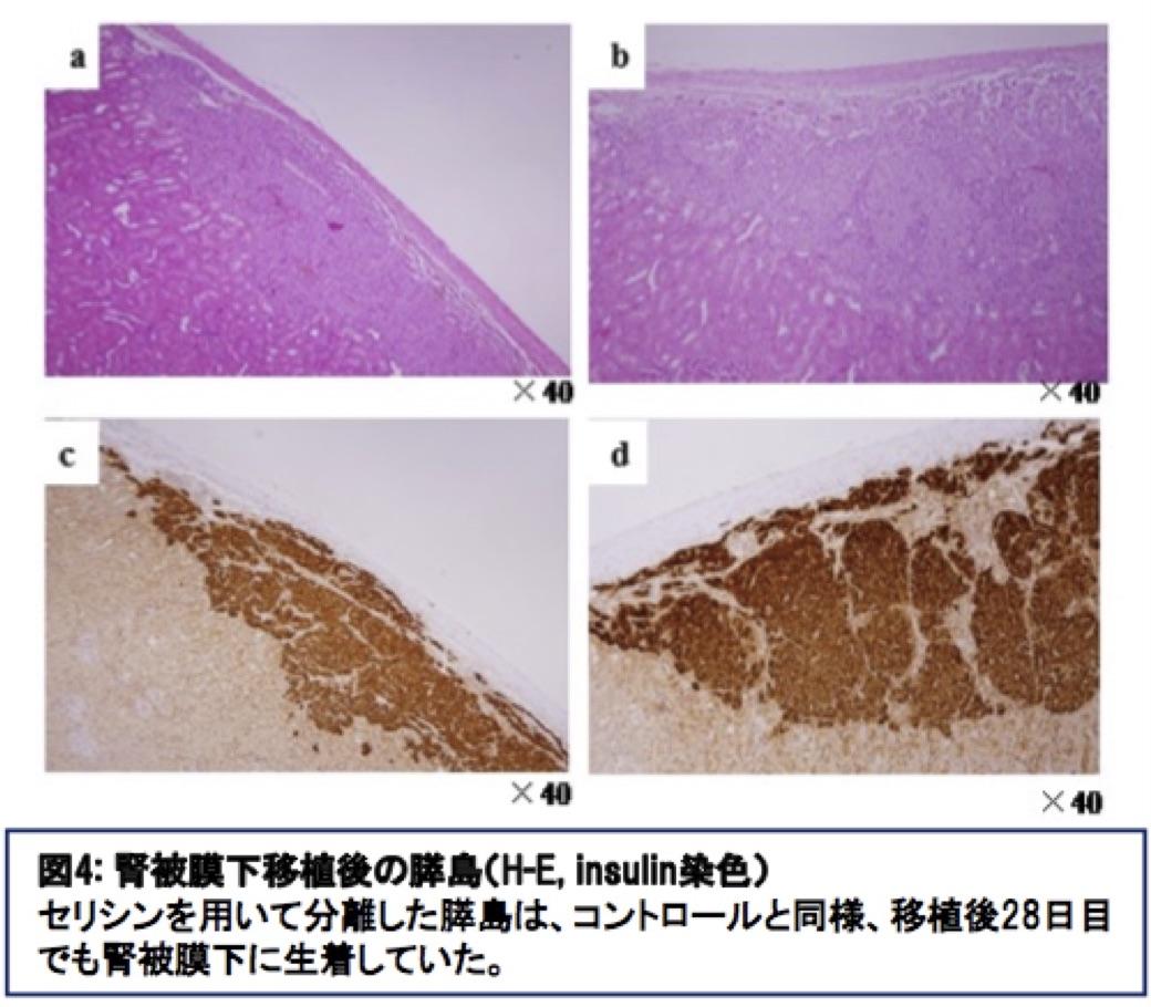 腎被膜下移植後の膵島(H-E,insulin染色)